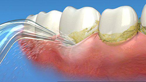 揭底口腔清洁的秘密  洁碧冲牙器与它牙医强烈推荐
